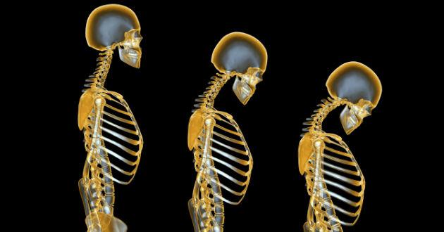 El dolor en el campo de la columna vertebral en los riñones